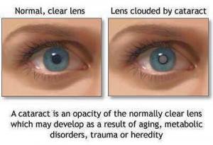 Lisa Bunin MD | Cataract Surgery | Allentown PA