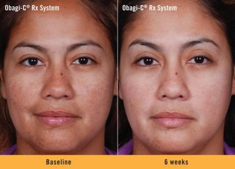 Obagi C Before and After | Dr. Lisa Bunin | Allentown PA