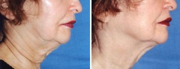 Skin Tightening Infrared Device Allentown Pa Lisa