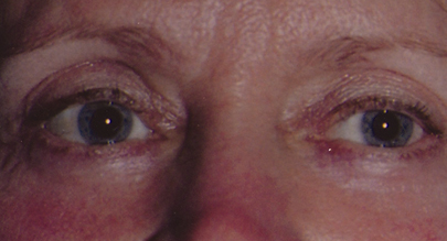 Eyelift Patient After | Blepharoplasty | Before and After Photos | Dr. Lisa Bunin | Allentown PA