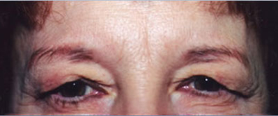 Eyelift Patient Before | Blepharoplasty | Before and After Photos | Dr. Lisa Bunin | Allentown PA