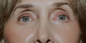 Laser Resurfacing Patient After Lower Eyelid Surgery | Before Laser Resurfacing | Dr. Lisa Bunin