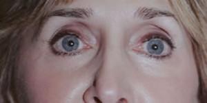Laser Resurfacing Patient After Lower Eyelid Surgery | After Laser Resurfacing | Dr. Lisa Bunin