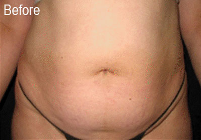 Lipo-E on Stomach | Female Patient Before | Before and After Photos | Dr. Lisa Bunin | Allentown PA