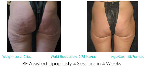 Lipoplasty Patient | Before and After Photos | Dr. Lisa Bunin | Allentown PA