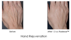 Hand Rejuvenation with Radiesse | Before and After Photos | Dr. Lisa Bunin | Allentown PA