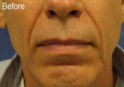 Male Radiesse Patient Before | Before and After Photos | Dr. Lisa Bunin | Allentown PA