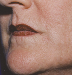 Radiesse Lips Patient After  Dr. Lisa Bunin   Before and After Photos   Allentown PA
