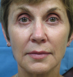 Sculptra Patient 1 After | Front View | Before and After Photos |Dr. Lisa Bunin | Allentown PA