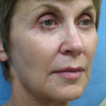 Sculptra Patient 1 After | Side View | Before and After Photos |Dr. Lisa Bunin | Allentown PA
