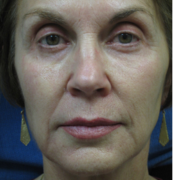 Sculptra Patient 1 Before | Front View | Before and After Photos |Dr. Lisa Bunin | Allentown PA