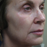 Sculptra Patient 1 Before | Side View | Before and After Photos | Dr. Lisa Bunin | Allentown PA