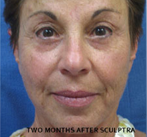 Sculptra Patient 2 Before | Front View | Before and After Photos |Dr. Lisa Bunin | Allentown PA