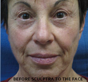 Sculptra Patient 2 Before | Front View | Before and After Photos | Dr. Lisa Bunin | Allentown PA