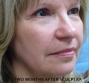 Sculptra Patient 3 After | Side View | Before and After Photos |Dr. Lisa Bunin | Allentown PA