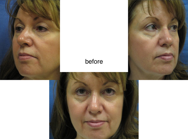 Voluma R-Lift Patient 2 | Dr. Lisa Bunin | Before and After Photos | Allentown PA