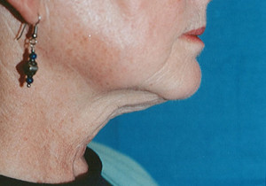 Titan Patient 1 Side After | Dr. Lisa Bunin | Before and After Photos | Allentown PA