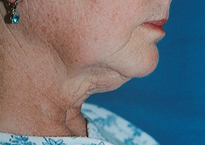 Titan Patient 1 Side Before | Dr. Lisa Bunin | Before and After Photos | Allentown PA