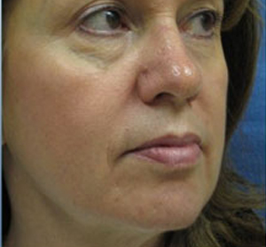 Voluma R Patient 2 Before | Side View | Radiesse | Before and After Photos |Dr. Lisa Bunin | Allentown PA