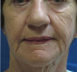 Voluma R Patient 4 Before | Front View | Radiesse | Before and After Photos |Dr. Lisa Bunin | Allentown PA