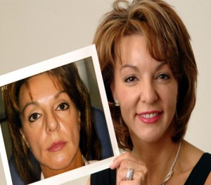Fillers Example | Before and After Photo | Dr. Lisa Bunin | Allentown PA