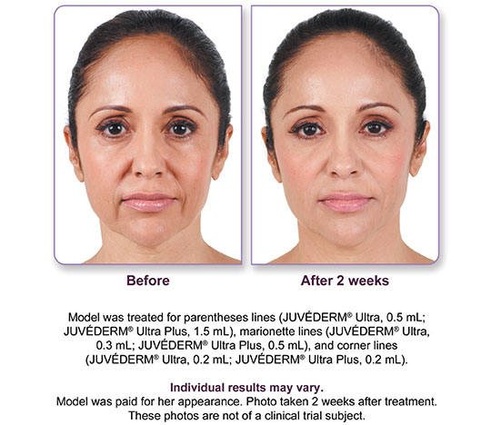 Juvederm Ultra Plus XC Before and After 1 | Dr. Lisa Bunin | Allentown PA
