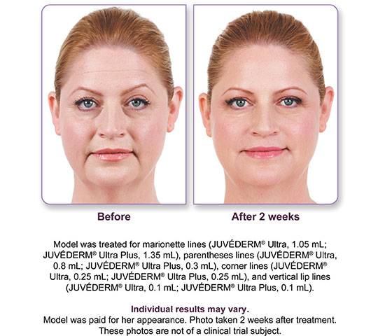 Juvederm Ultra Plus XC Before and After 3 | Dr. Lisa Bunin | Allentown PA