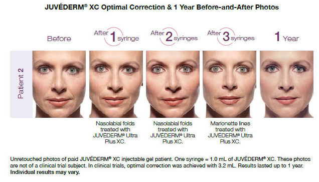 Juvedern XC Before and After Photos | Dr. Lisa Bunin | Allentown PA