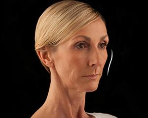 Voluma Patient 2 Before   Dr. Lisa Bunin   Allentown PA