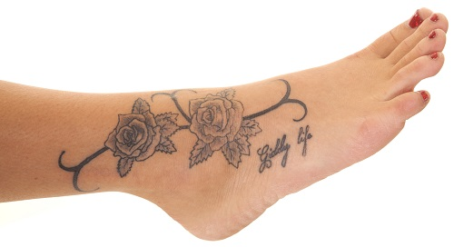 Tattoo removal lisa bunin md for Tattoo removal maryland