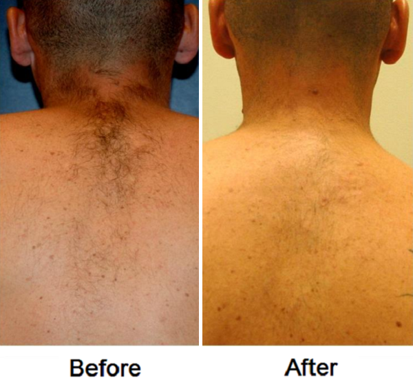 Laser Hair Removal Before And After Photos Allentown Pa