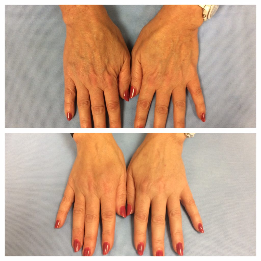 Restylane 174 Refyne Amp Defyne For Hands Before And After