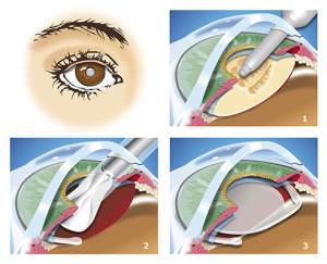 illustration of interocular lens procedure