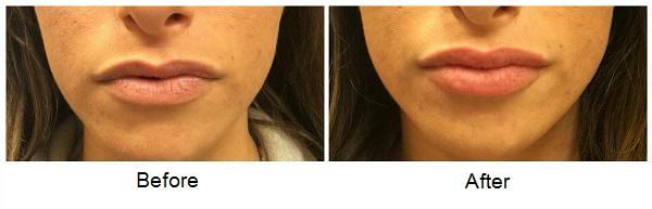 Lips 042516