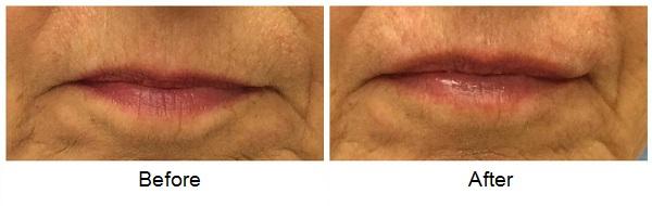 Lips2 042516
