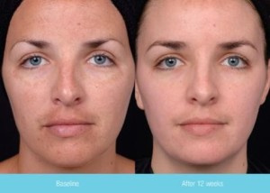 Condition Enhance System | Dr. Lisa Bunin | Allentown PA