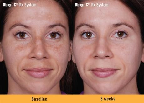 Obagi Before and After 2 | Dr. Lisa Bunin | Allentown PA