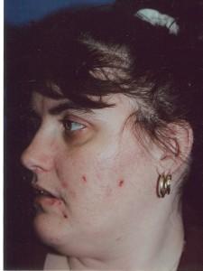 Obagi Treating Acne Before   Dr. Lisa Bunin   Allentown PA