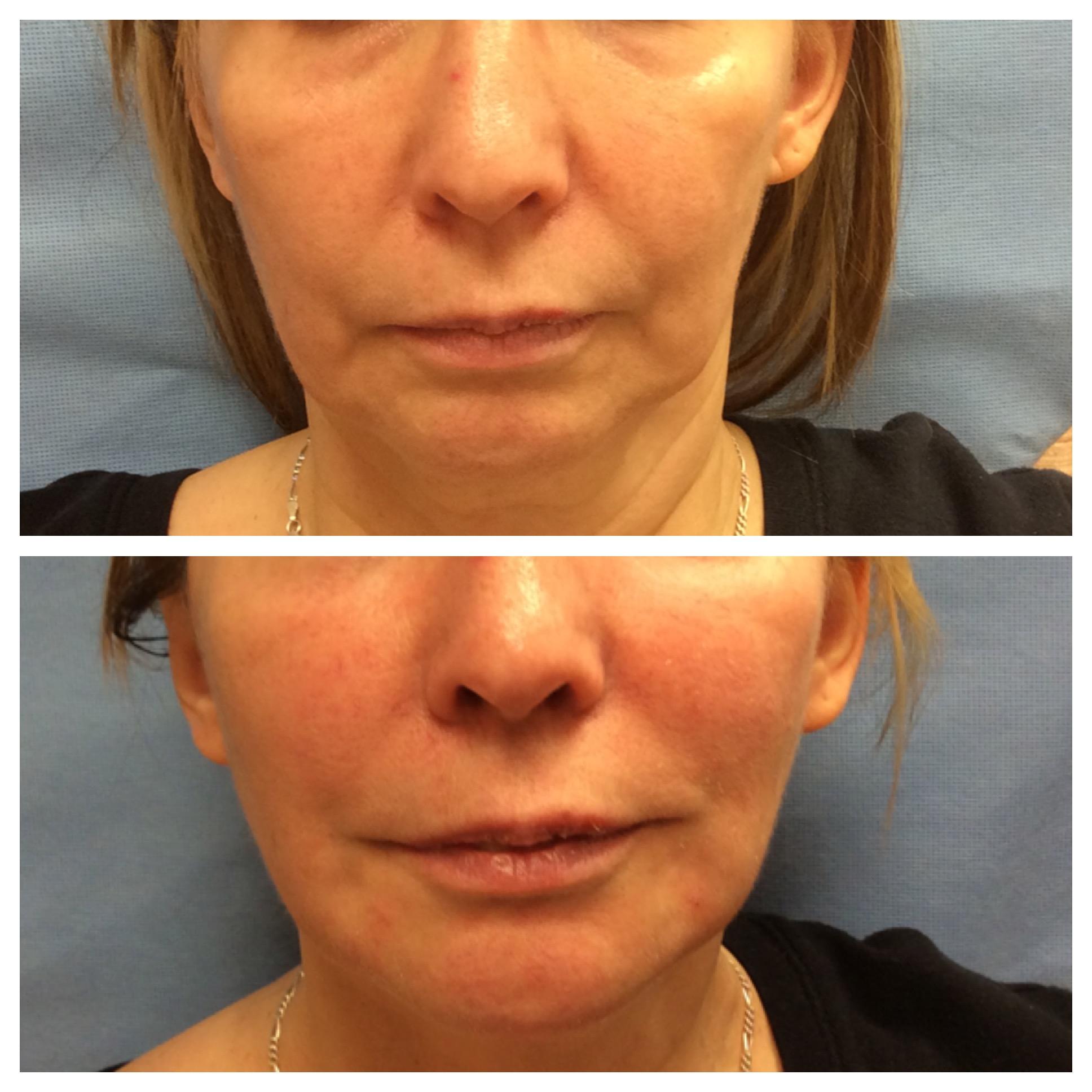Lisa Bunin MD | Radiesse® Before & After Photos | Lisa Bunin MD