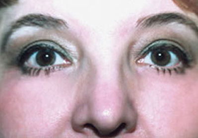 Eyelift Patient After | Blepharoplasty | Bags Under Eyes | Before and After Photos | Dr. Lisa Bunin | Allentown PA