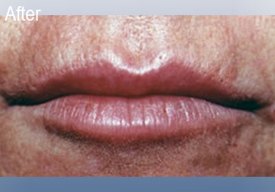 Restylane Lips After 3   Dr Lisa Bunin   Before and After Photos   Allentown PA