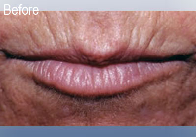 Restylane Lips Before 3   Dr. Lisa Bunin   Before and After Photos   Allentown PA