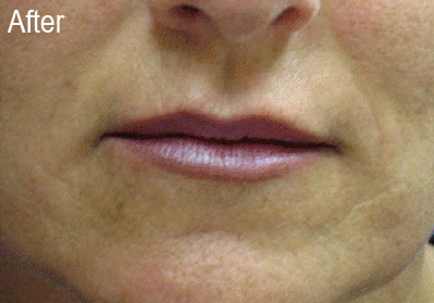 Restylane Female Patient 3 After | Before and After Photos | Dr. Lisa Bunin | Allentown PA