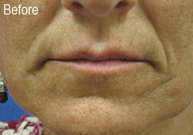Restylane Female Patient 3 Before | Before and After Photos | Dr. Lisa Bunin | Allentown PA