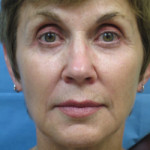 Sculptra Patient 1 After   Front View   Before and After Photos  Dr. Lisa Bunin   Allentown PA