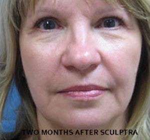 Sculptra Patient 3 After   Front View   Before and After Photos  Dr. Lisa Bunin   Allentown PA