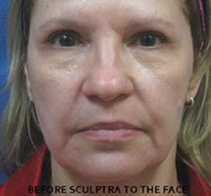 Sculptra Patient 3 Before | Front View | Before and After Photos | Dr. Lisa Bunin | Allentown PA
