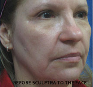 Sculptra Patient 3 Before | Side View | Before and After Photos | Dr. Lisa Bunin | Allentown PA