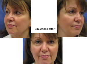 Voluma R-Lift After Patient 2 | Dr. Lisa Bunin | Before and After Photos | Allentown PA