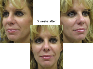 Voluma R-Lift After Patient 1 | Dr. Lisa Bunin | Before and After Photos | Allentown PA